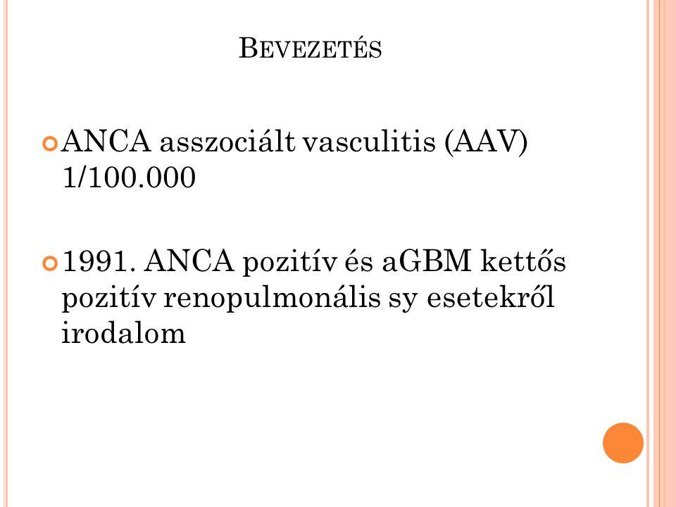 B EVEZETÉS ANCA asszociált vasculitis (AAV) 1/100.000 1991. ANCA pozitív és aGBM kettős pozitív renopulmonális sy esetekről irodalom