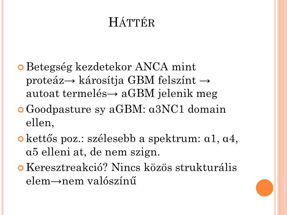H ÁTTÉR Betegség kezdetekor ANCA mint proteáz→ károsítja GBM felszínt → autoat termelés→ aGBM jelenik meg Goodpasture sy aGBM: α3NC1 domain ellen, kettős poz.: szélesebb a spektrum: α1, α4, α5 elleni at, de nem szign.