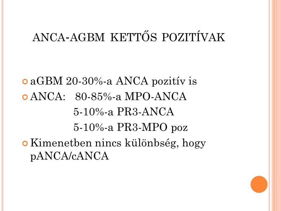 ANCA - AGBM KETTŐS POZITÍVAK aGBM 20-30%-a ANCA pozitív is ANCA: 80-85%-a MPO-ANCA 5-10%-a PR3-ANCA 5-10%-a PR3-MPO poz Kimenetben nincs különbség, hogy pANCA/cANCA