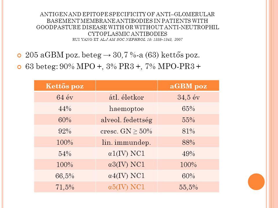 DEOEC BI, NEPHROLÓGIA TANSZÉK,1993-2013 KLINIKAI ADATOK 87 ANCA poz, 11 aGBM poz, → 36%-a (4) kettős poz.