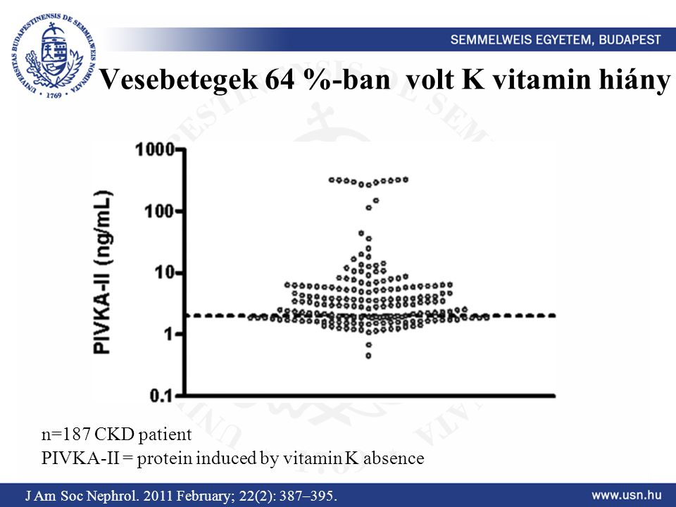 Vesebetegek 64 %-ban volt K vitamin hiány J Am Soc Nephrol. 2011 February; 22(2): 387–395. PIVKA-II = protein induced by vitamin K absence n=187 CKD p
