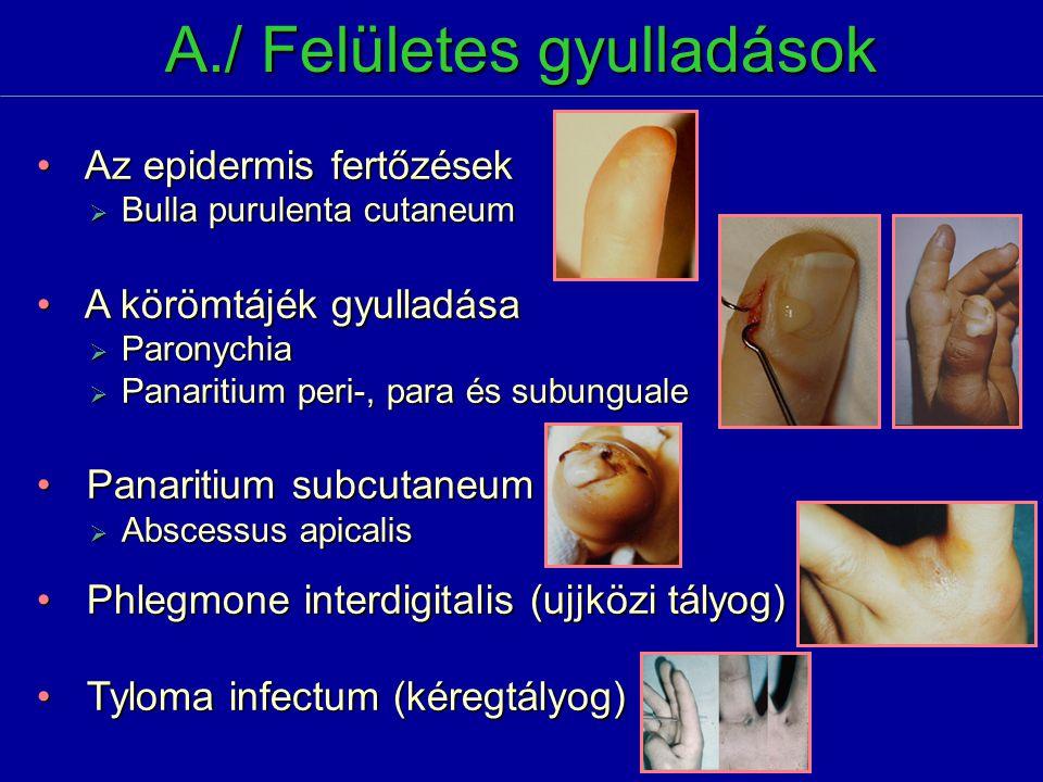 Az epidermis fertőzések Az epidermis fertőzések  Bulla purulenta cutaneum A körömtájék gyulladása A körömtájék gyulladása  Paronychia  Panaritium p