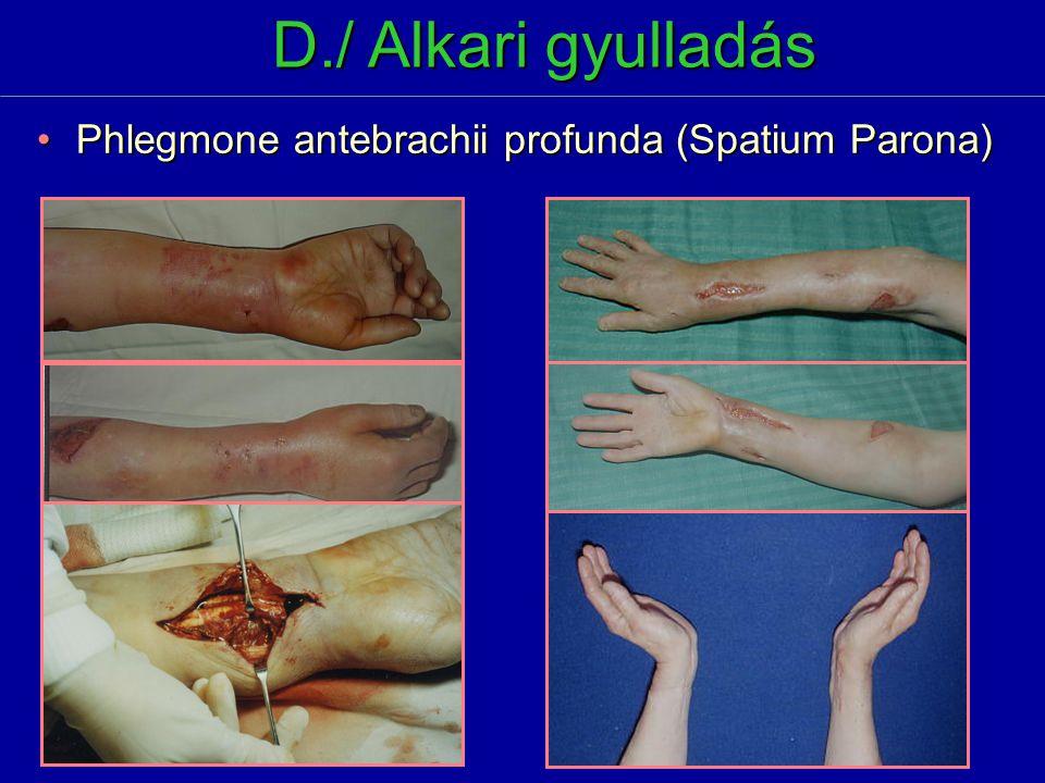D./ Alkari gyulladás Phlegmone antebrachii profunda (Spatium Parona)Phlegmone antebrachii profunda (Spatium Parona)