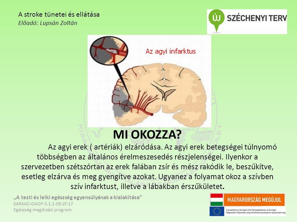 MI OKOZZA? Az agyi erek ( artériák) elzáródása. Az agyi erek betegségei túlnyomó többségben az általános érelmeszesedés részjelenségei. Ilyenkor a sze