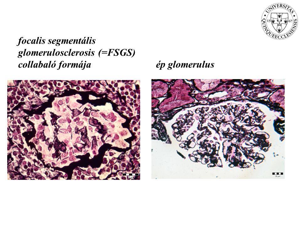 focalis segmentális glomerulosclerosis (=FSGS) collabaló formájaép glomerulus