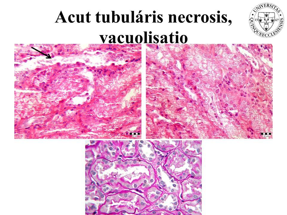 Acut tubuláris necrosis, vacuolisatio