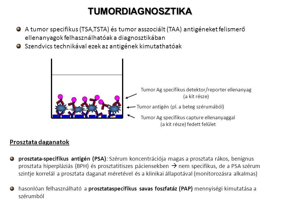 TUMORDIAGNOSZTIKA A tumor specifikus (TSA,TSTA) és tumor asszociált (TAA) antigéneket felismerő ellenanyagok felhasználhatóak a diagnosztikában Szendv