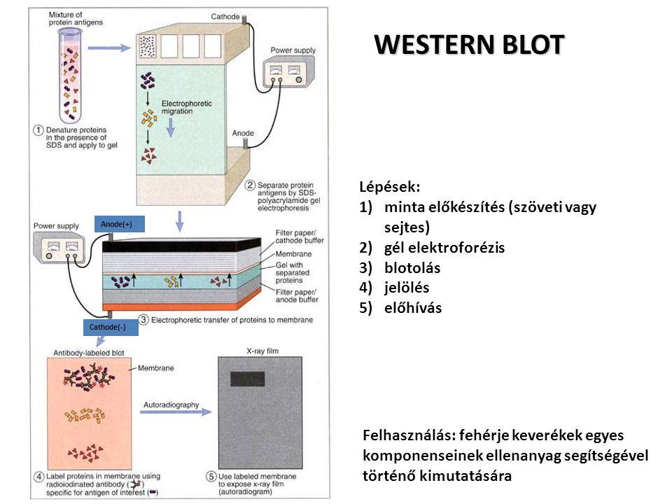 WESTERN BLOT Lépések: 1)minta előkészítés (szöveti vagy sejtes) 2)gél elektroforézis 3)blotolás 4)jelölés 5)előhívás Felhasználás: fehérje keverékek e