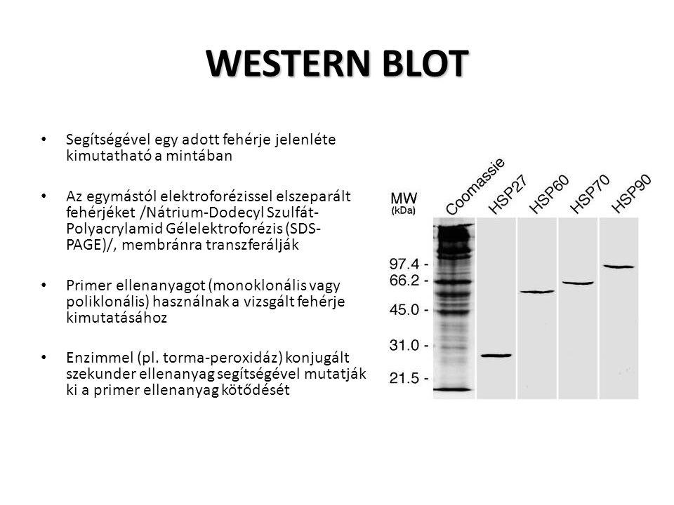 Segítségével egy adott fehérje jelenléte kimutatható a mintában Az egymástól elektroforézissel elszeparált fehérjéket /Nátrium-Dodecyl Szulfát- Polyac