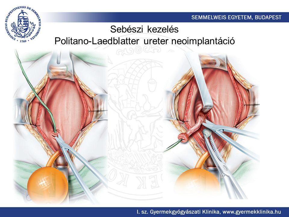 Sebészi kezelés Politano-Laedblatter ureter neoimplantáció