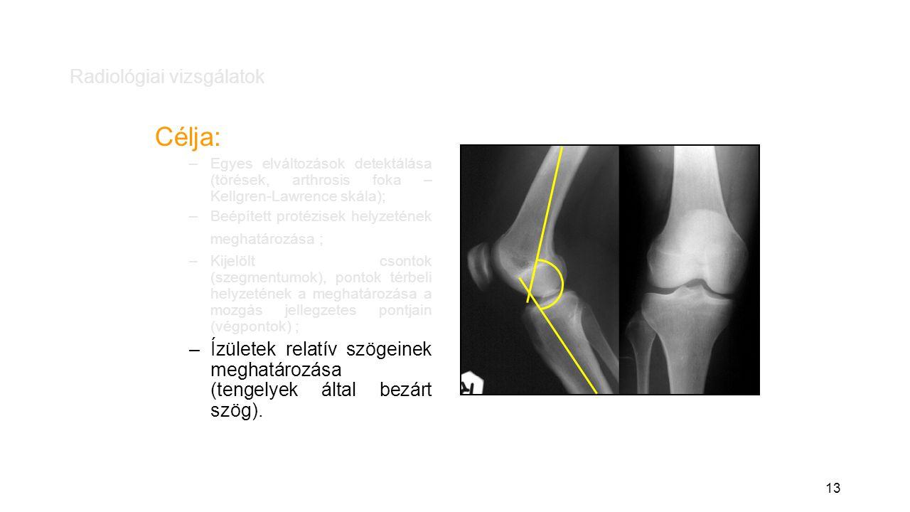 13 Radiológiai vizsgálatok Célja: –Egyes elváltozások detektálása (törések, arthrosis foka – Kellgren-Lawrence skála); –Beépített protézisek helyzetének meghatározása ; –Kijelölt csontok (szegmentumok), pontok térbeli helyzetének a meghatározása a mozgás jellegzetes pontjain (végpontok) ; –Ízületek relatív szögeinek meghatározása (tengelyek által bezárt szög).