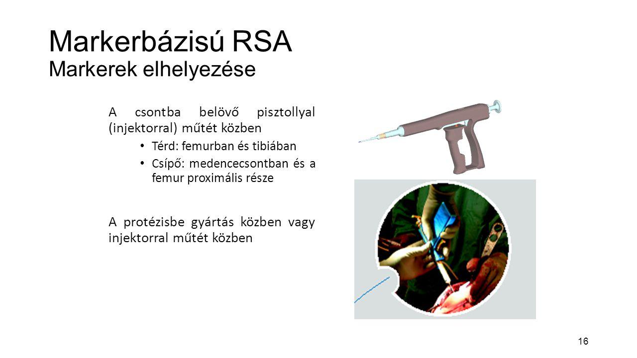 16 Markerbázisú RSA Markerek elhelyezése A csontba belövő pisztollyal (injektorral) műtét közben Térd: femurban és tibiában Csípő: medencecsontban és a femur proximális része A protézisbe gyártás közben vagy injektorral műtét közben