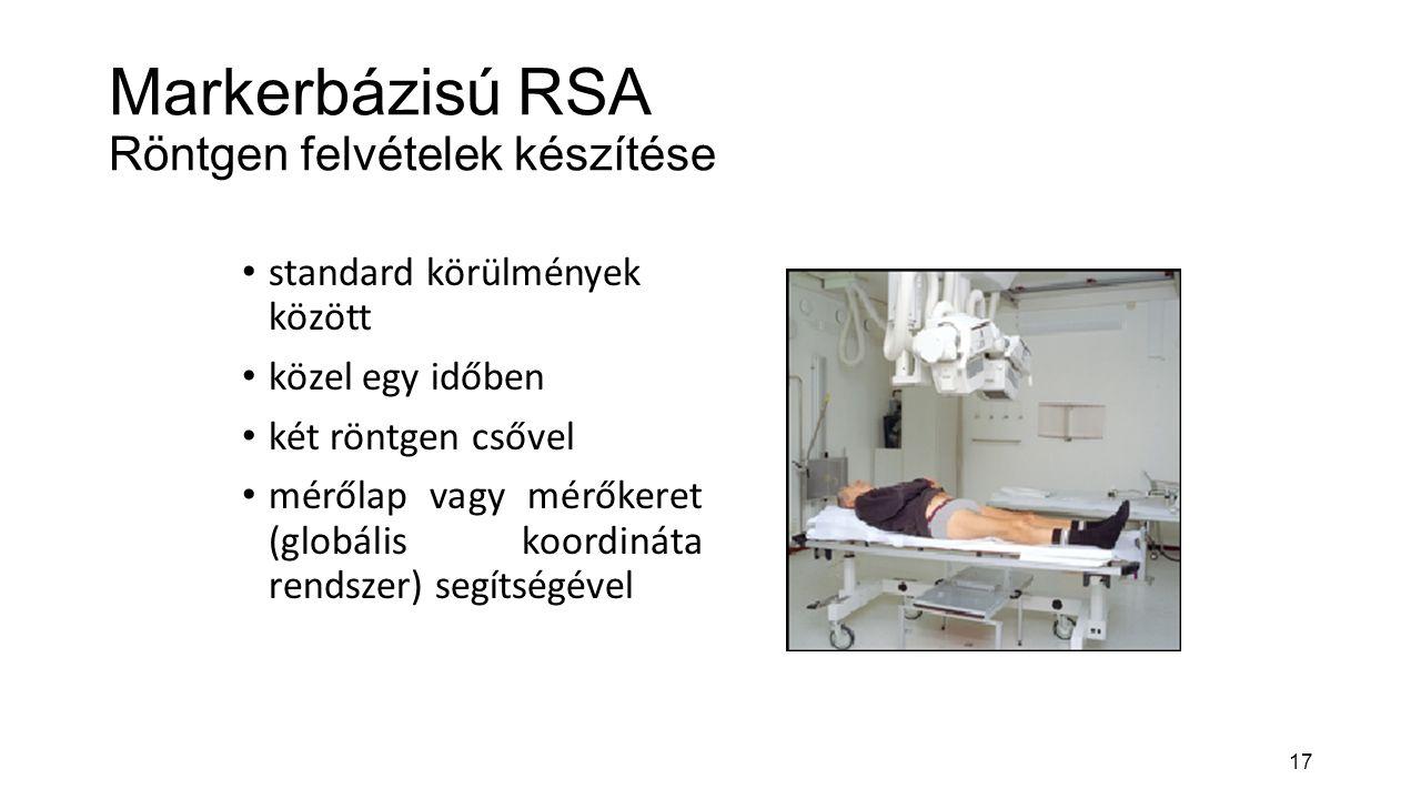 17 Markerbázisú RSA Röntgen felvételek készítése standard körülmények között közel egy időben két röntgen csővel mérőlap vagy mérőkeret (globális koordináta rendszer) segítségével