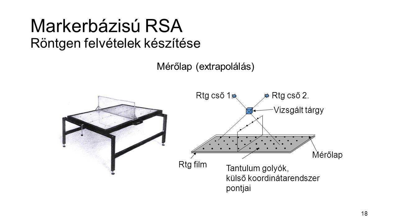 18 Markerbázisú RSA Röntgen felvételek készítése Mérőlap (extrapolálás) Rtg cső 1.Rtg cső 2. Vizsgált tárgy Tantulum golyók, külső koordinátarendszer
