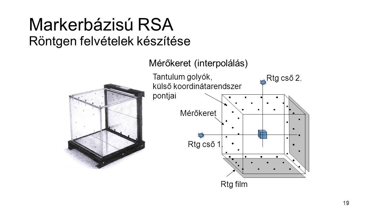 19 Markerbázisú RSA Röntgen felvételek készítése Mérőkeret (interpolálás) Mérőkeret Rtg film Tantulum golyók, külső koordinátarendszer pontjai Rtg cső 1.