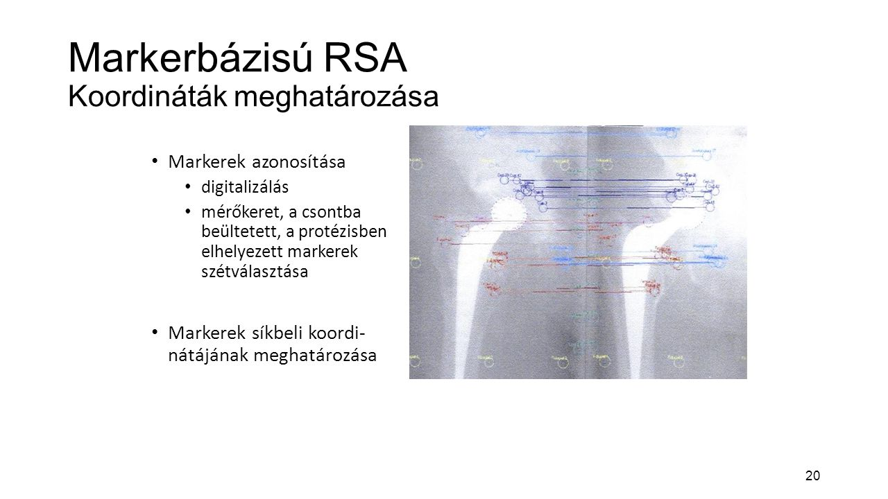 20 Markerbázisú RSA Koordináták meghatározása Markerek azonosítása digitalizálás mérőkeret, a csontba beültetett, a protézisben elhelyezett markerek szétválasztása Markerek síkbeli koordi- nátájának meghatározása