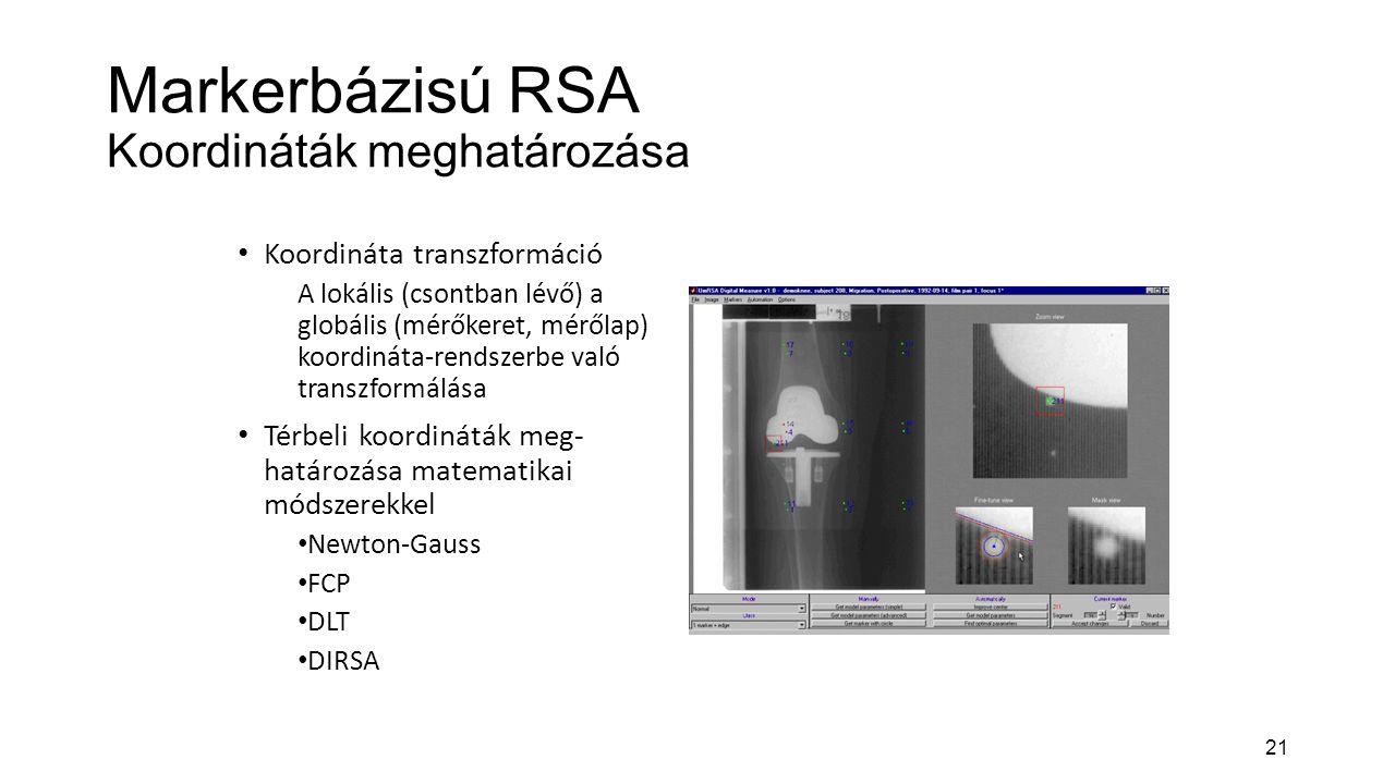 21 Markerbázisú RSA Koordináták meghatározása Koordináta transzformáció A lokális (csontban lévő) a globális (mérőkeret, mérőlap) koordináta-rendszerbe való transzformálása Térbeli koordináták meg- határozása matematikai módszerekkel Newton-Gauss FCP DLT DIRSA