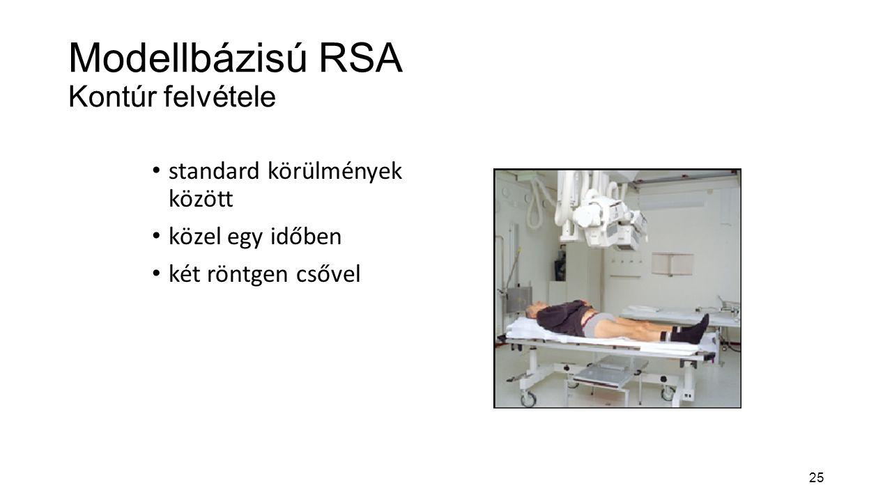 25 Modellbázisú RSA Kontúr felvétele standard körülmények között közel egy időben két röntgen csővel