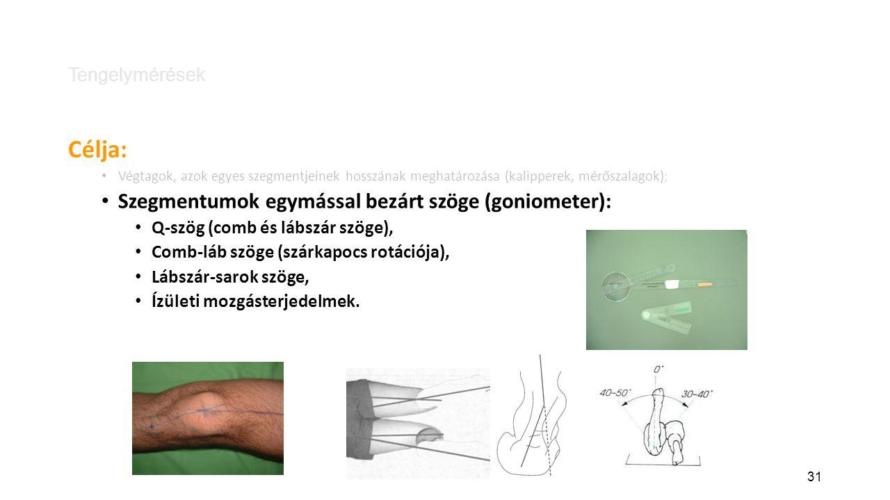 31 Tengelymérések Célja: Végtagok, azok egyes szegmentjeinek hosszának meghatározása (kalipperek, mérőszalagok) ; Szegmentumok egymással bezárt szöge (goniometer): Q-szög (comb és lábszár szöge), Comb-láb szöge (szárkapocs rotációja), Lábszár-sarok szöge, Ízületi mozgásterjedelmek.