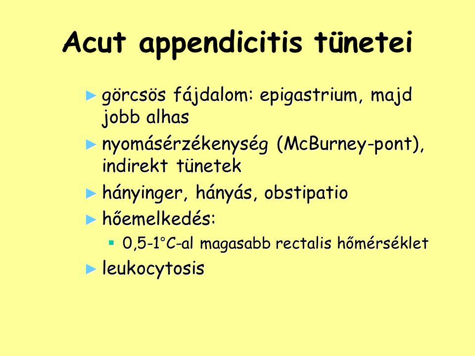 Acut appendicitis tünetei ► görcsös fájdalom: epigastrium, majd jobb alhas ► nyomásérzékenység (McBurney-pont), indirekt tünetek ► hányinger, hányás,