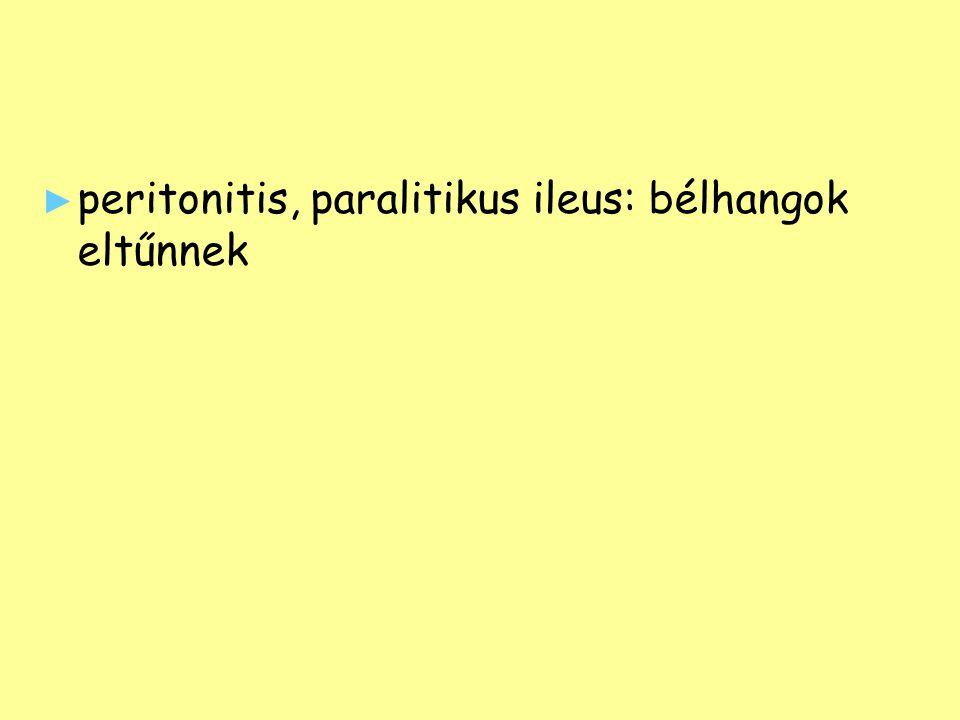 ► ► peritonitis, paralitikus ileus: bélhangok eltűnnek