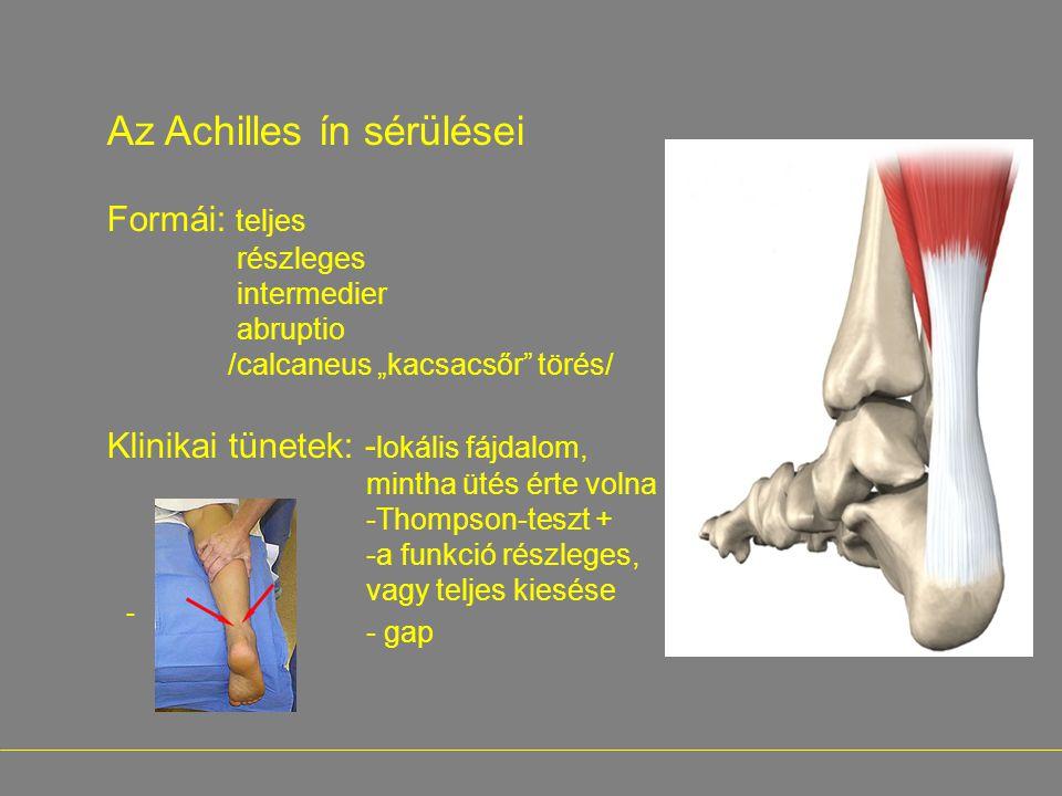 """- Az Achilles ín sérülései Formái: teljes részleges intermedier abruptio /calcaneus """"kacsacsőr"""" törés/ Klinikai tünetek: - lokális fájdalom, mintha üt"""