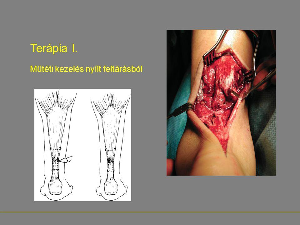 - Terápia I. Műtéti kezelés nyílt feltárásból