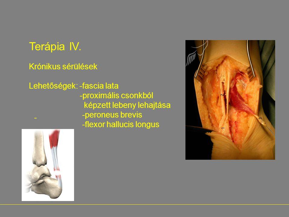 - Terápia IV. Krónikus sérülések Lehetőségek: -fascia lata -proximális csonkból képzett lebeny lehajtása -peroneus brevis -flexor hallucis longus