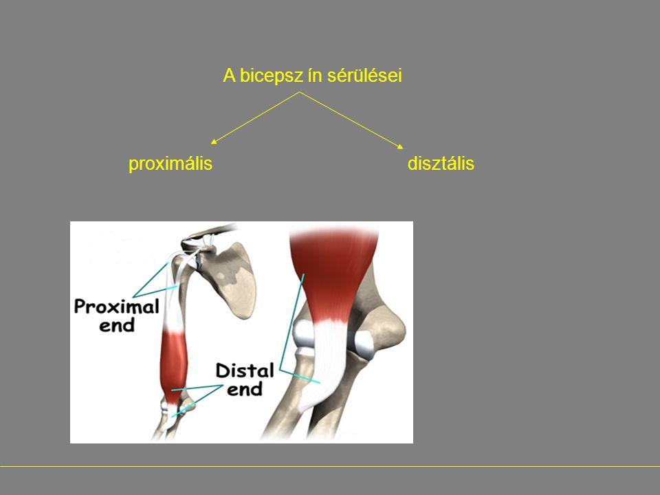 - A bicepsz ín sérülései proximális disztális