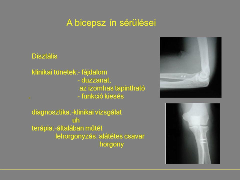 - A bicepsz ín sérülései Disztális klinikai tünetek:- fájdalom - duzzanat, az izomhas tapintható - funkció kiesés diagnosztika:-klinikai vizsgálat uh