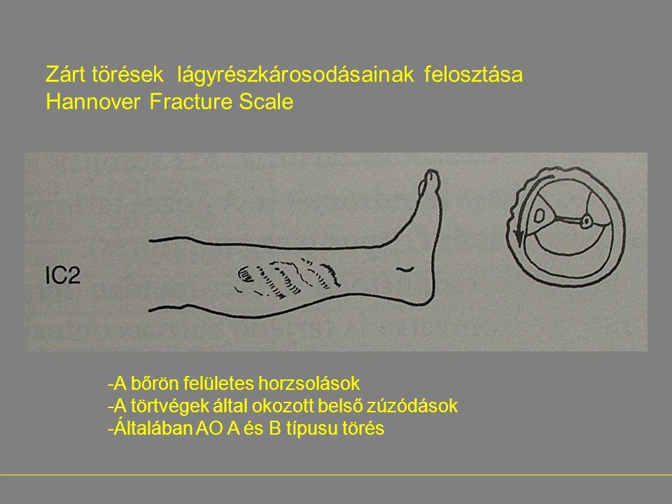 Zárt törések lágyrészkárosodásainak felosztása Hannover Fracture Scale -A bőrön felületes horzsolások -A törtvégek által okozott belső zúzódások -Álta
