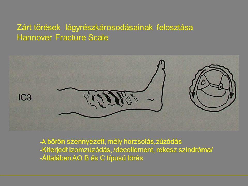 Zárt törések lágyrészkárosodásainak felosztása Hannover Fracture Scale -A bőrön szennyezett, mély horzsolás,zúzódás -Kiterjedt izomzúzódás, /decolleme