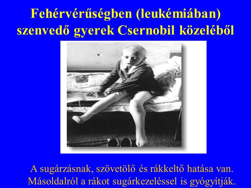 Fehérvérűségben (leukémiában) szenvedő gyerek Csernobil közeléből A sugárzásnak, szövetölő és rákkeltő hatása van. Másoldalról a rákot sugárkezeléssel