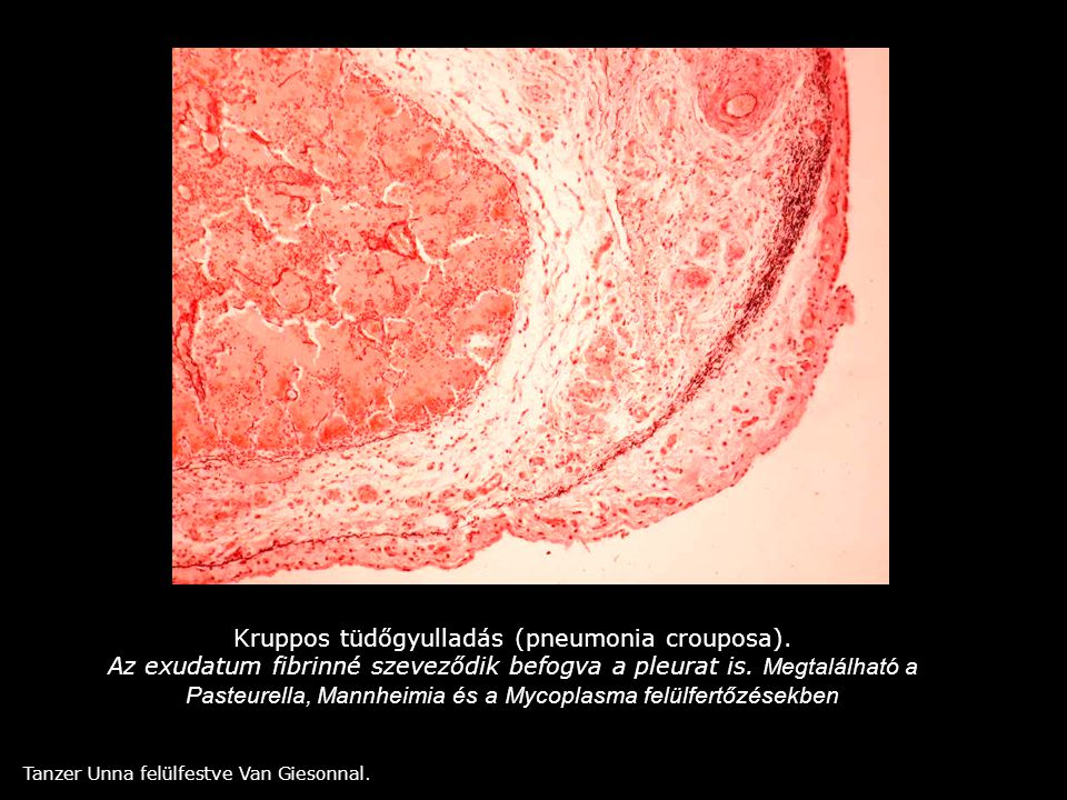 Kruppos tüdőgyulladás (pneumonia crouposa). Az exudatum fibrinné szeveződik befogva a pleurat is. Megtalálható a Pasteurella, Mannheimia és a Mycoplas