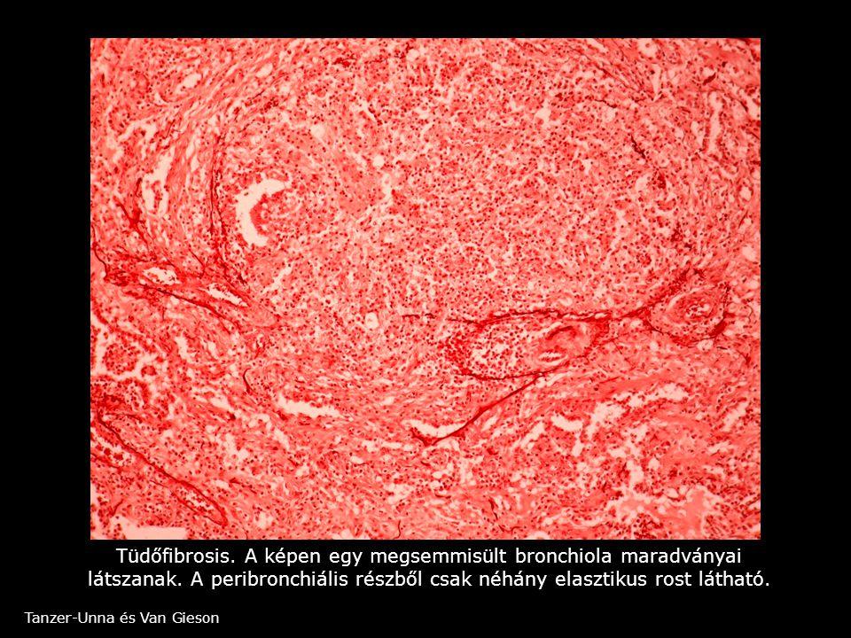 Tüdőfibrosis. A képen egy megsemmisült bronchiola maradványai látszanak. A peribronchiális részből csak néhány elasztikus rost látható. Tanzer-Unna és