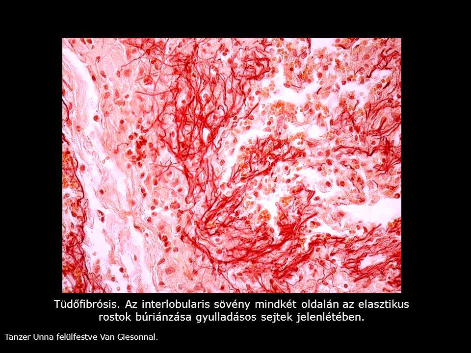 Tüdőfibrósis. Az interlobularis sövény mindkét oldalán az elasztikus rostok búriánzása gyulladásos sejtek jelenlétében. Tanzer Unna felülfestve Van Gi