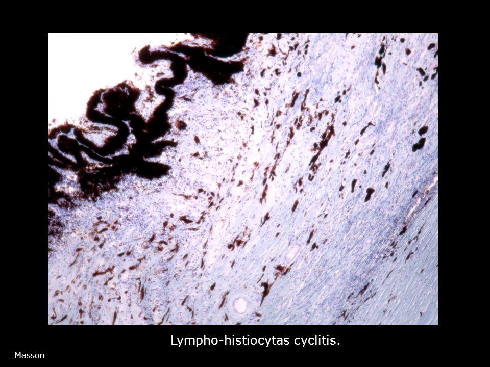 Masson Lympho-histiocytas cyclitis.