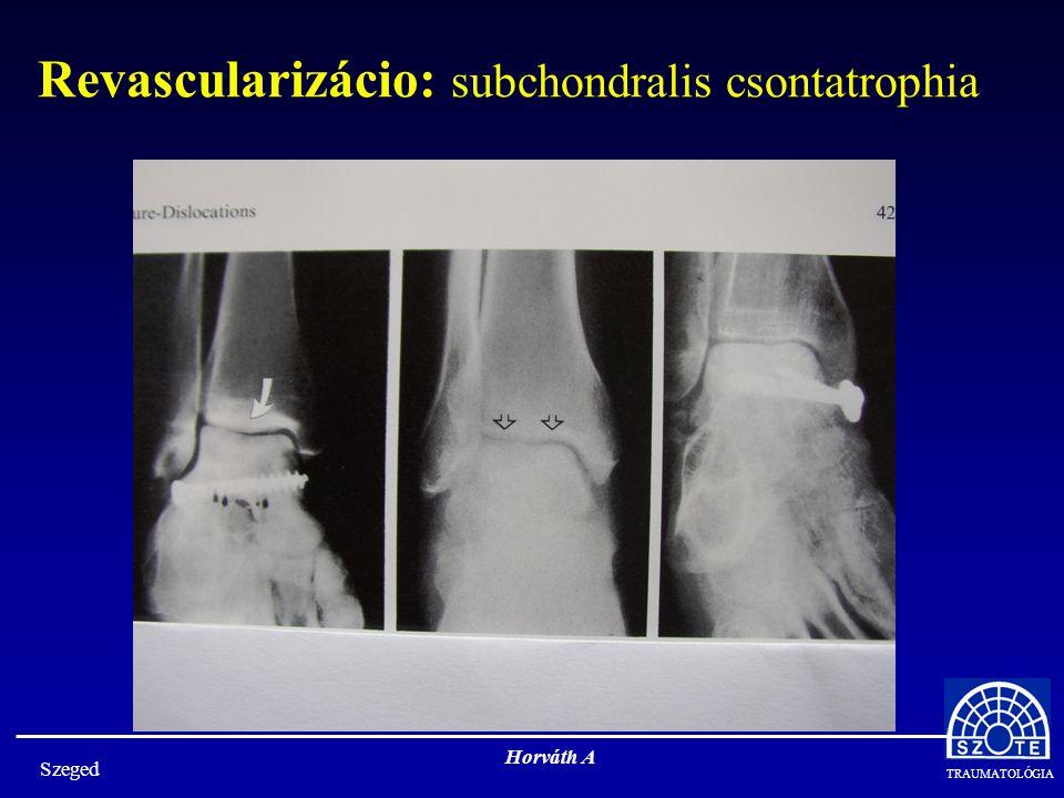 TRAUMATOLÓGIA Szeged Horváth A Revascularizácio: subchondralis csontatrophia