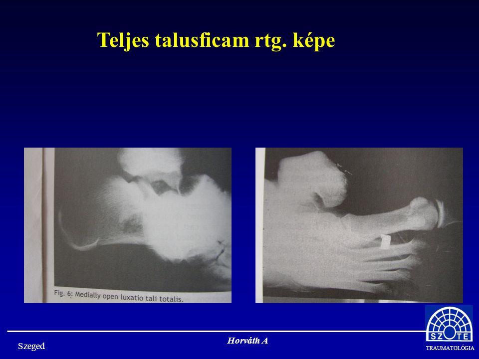 TRAUMATOLÓGIA Horváth A Szeged A calcaneus egy meglehetősen bonyolult alakú, vékony corticalissal rendelkező csont, vérellátása a talussal ellentétben igen bőséges, ezért álízületei, elhalása igen ritka, de a környező bőr vérellátása szegényes!.