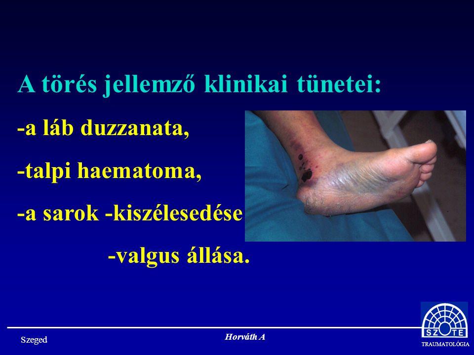 TRAUMATOLÓGIA Horváth A A törés jellemző klinikai tünetei: -a láb duzzanata, -talpi haematoma, -a sarok -kiszélesedése -valgus állása.