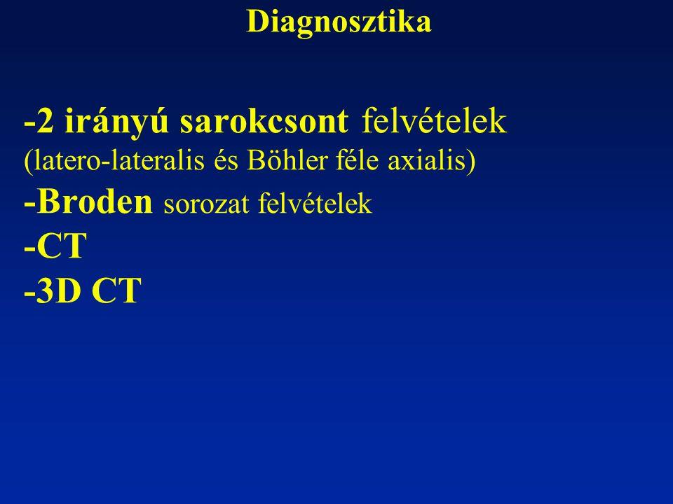 Diagnosztika -2 irányú sarokcsont felvételek (latero-lateralis és Böhler féle axialis) -Broden sorozat felvételek -CT -3D CT