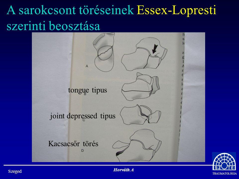 TRAUMATOLÓGIA Szeged Horváth A A sarokcsont töréseinek Essex-Lopresti szerinti beosztása tongue tipus joint depressed tipus Kacsacsőr törés