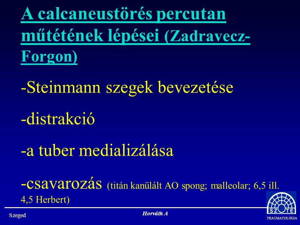 TRAUMATOLÓGIA Szeged Horváth A A calcaneustörés percutan műtétének lépései (Zadravecz- Forgon) -Steinmann szegek bevezetése -distrakció -a tuber medializálása -csavarozás (titán kanülált AO spong; malleolar; 6,5 ill.