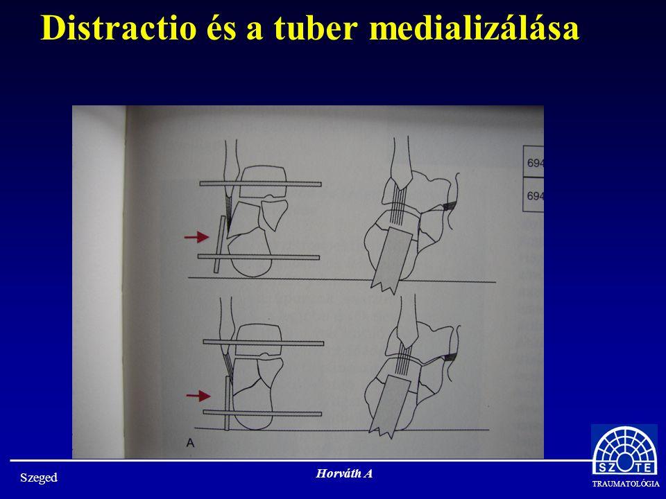 TRAUMATOLÓGIA Szeged Horváth A Distractio és a tuber medializálása
