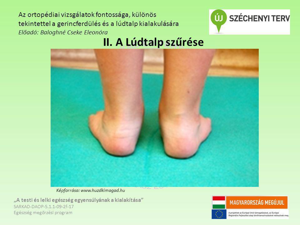 """II. A Lúdtalp szűrése """"A testi és lelki egészség egyensúlyának a kialakítása"""" SARKAD-DAOP-5.1.1-09-2f-17 Egészség megőrzési program Az ortopédiai vizs"""