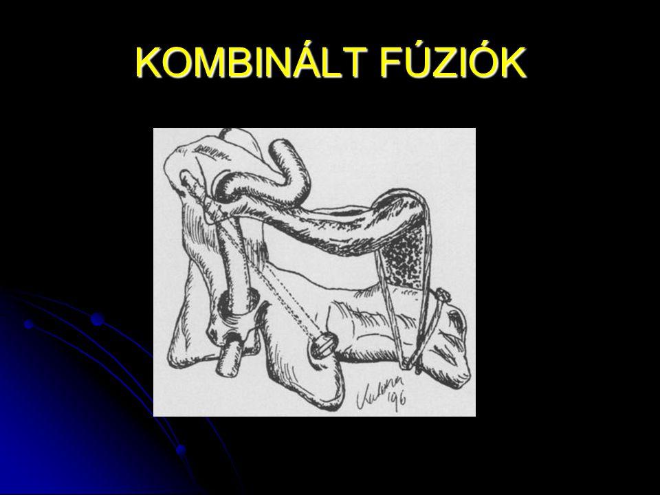 KOMBINÁLT FÚZIÓK