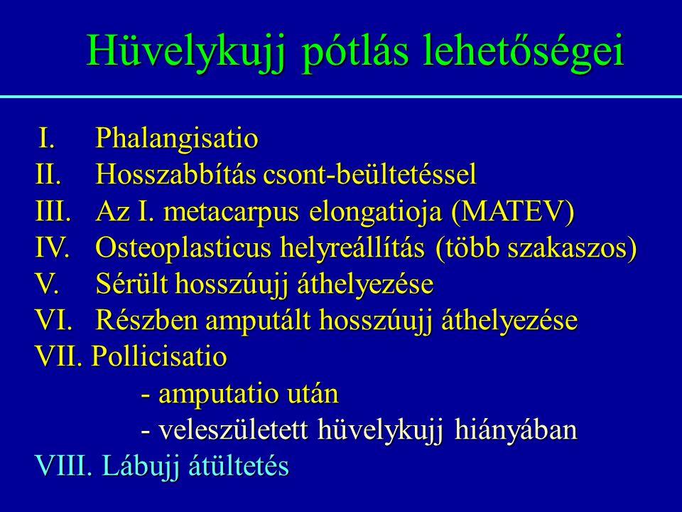 Hüvelykujj pótlás lehetőségei I. Phalangisatio II. Hosszabbítás csont-beültetéssel II. Hosszabbítás csont-beültetéssel III. Az I. metacarpus elongatio