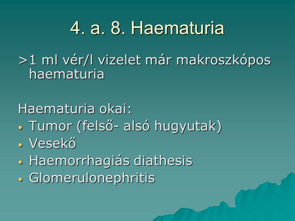 4. a. 8. Haematuria >1 ml vér/l vizelet már makroszkópos haematuria Haematuria okai: Tumor (felső- alsó hugyutak) Tumor (felső- alsó hugyutak) Vesekő
