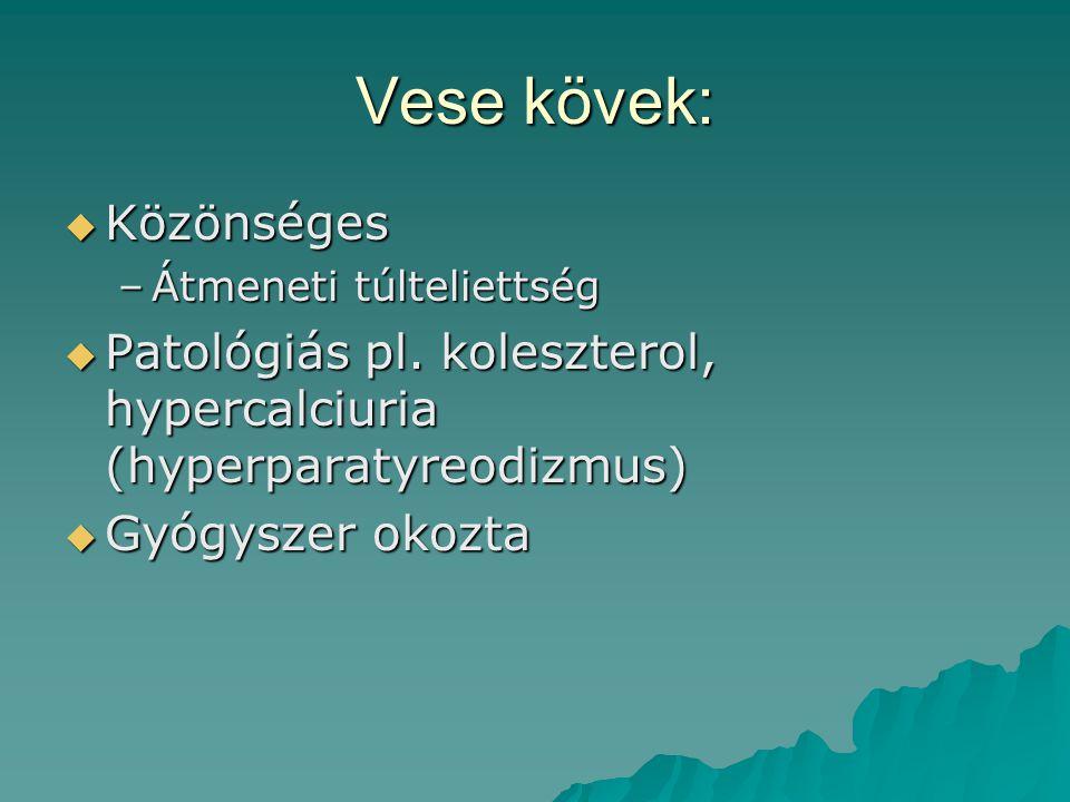 Vese kövek:  Közönséges –Átmeneti túlteliettség  Patológiás pl. koleszterol, hypercalciuria (hyperparatyreodizmus)  Gyógyszer okozta