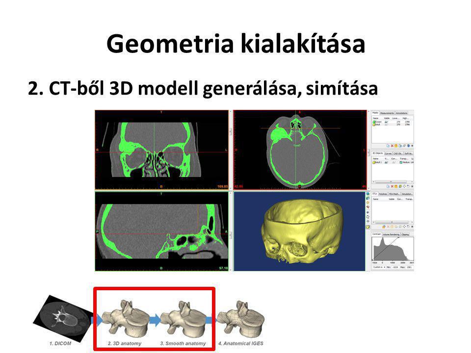 Geometria kialakítása 2. CT-ből 3D modell generálása, simítása